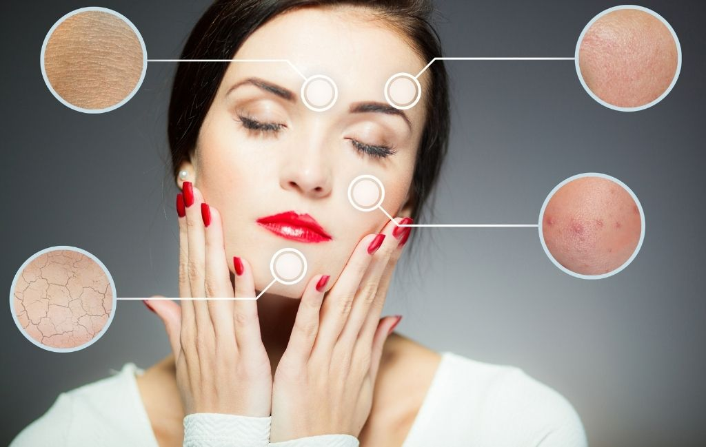 Skin problems – what you need to know